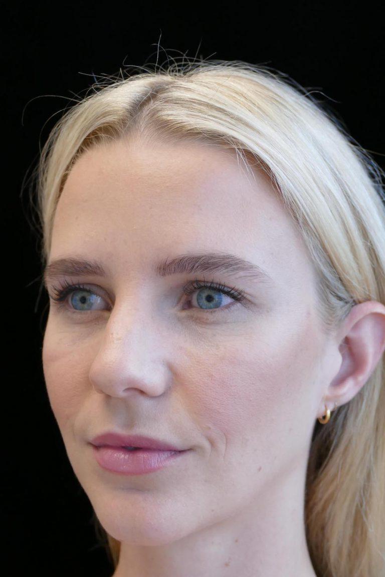 facial rejuvenation patient 1