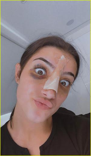 charli's nose job